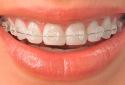 ODL Dental Clinic